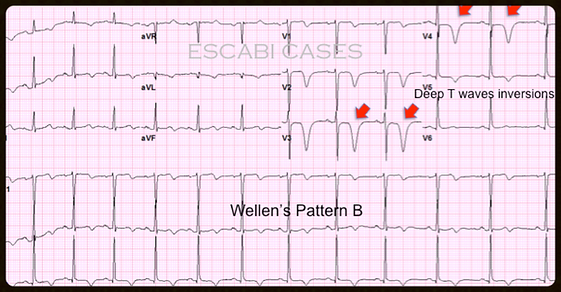 Mastering STEMI ECG; Recognized Wellen's Patterns