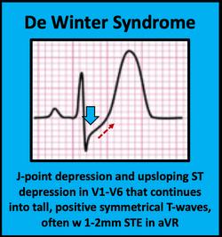 De Winter Syndrome