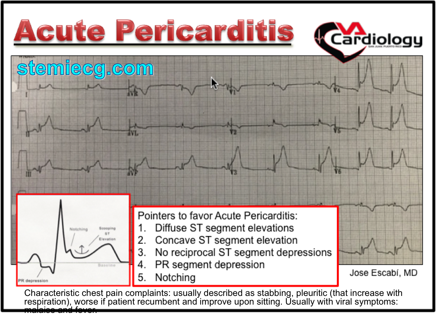 ECG Mim Pericarditis