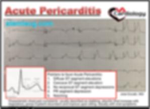 Mastering STEMI ECG; Pericarditis may Mimick STEMI
