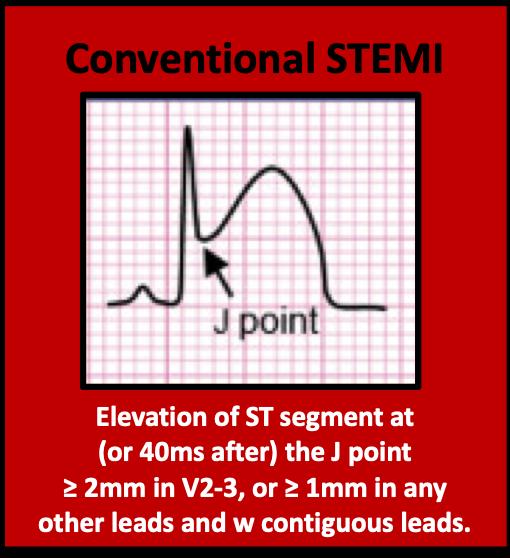 Conventional STEMI