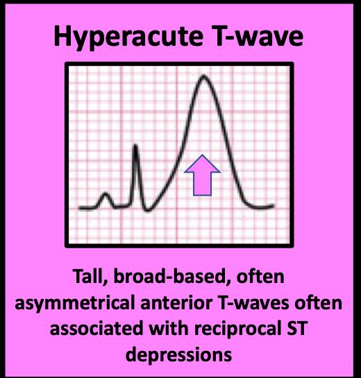 Peak T wave