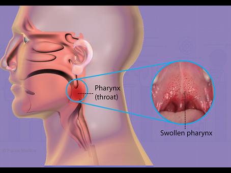 Pharyngitis ( Sore Throat) Viral versus Bacterial Pharyngitis