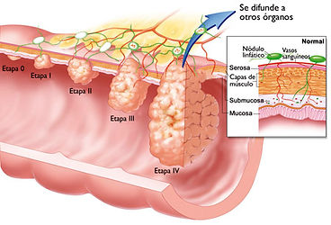 cancer colon.jpg