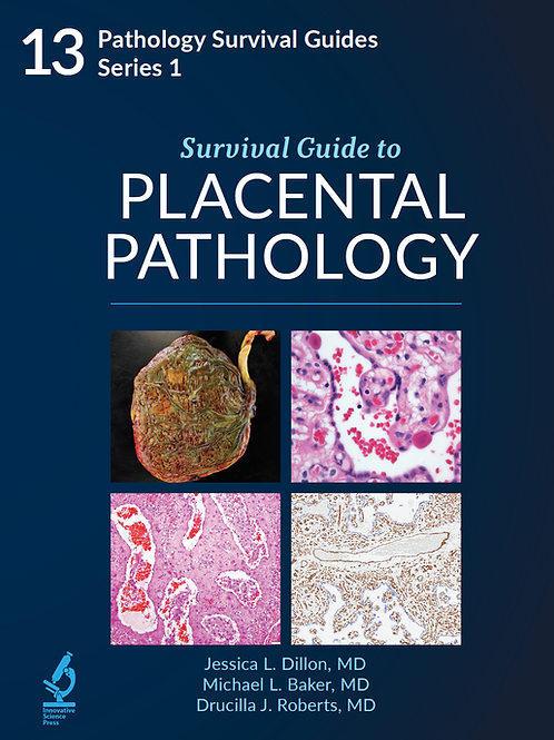 Survival Guide to Placental Pathology