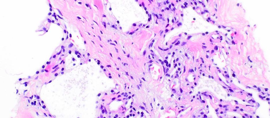 Pancreatic serous cystadenoma