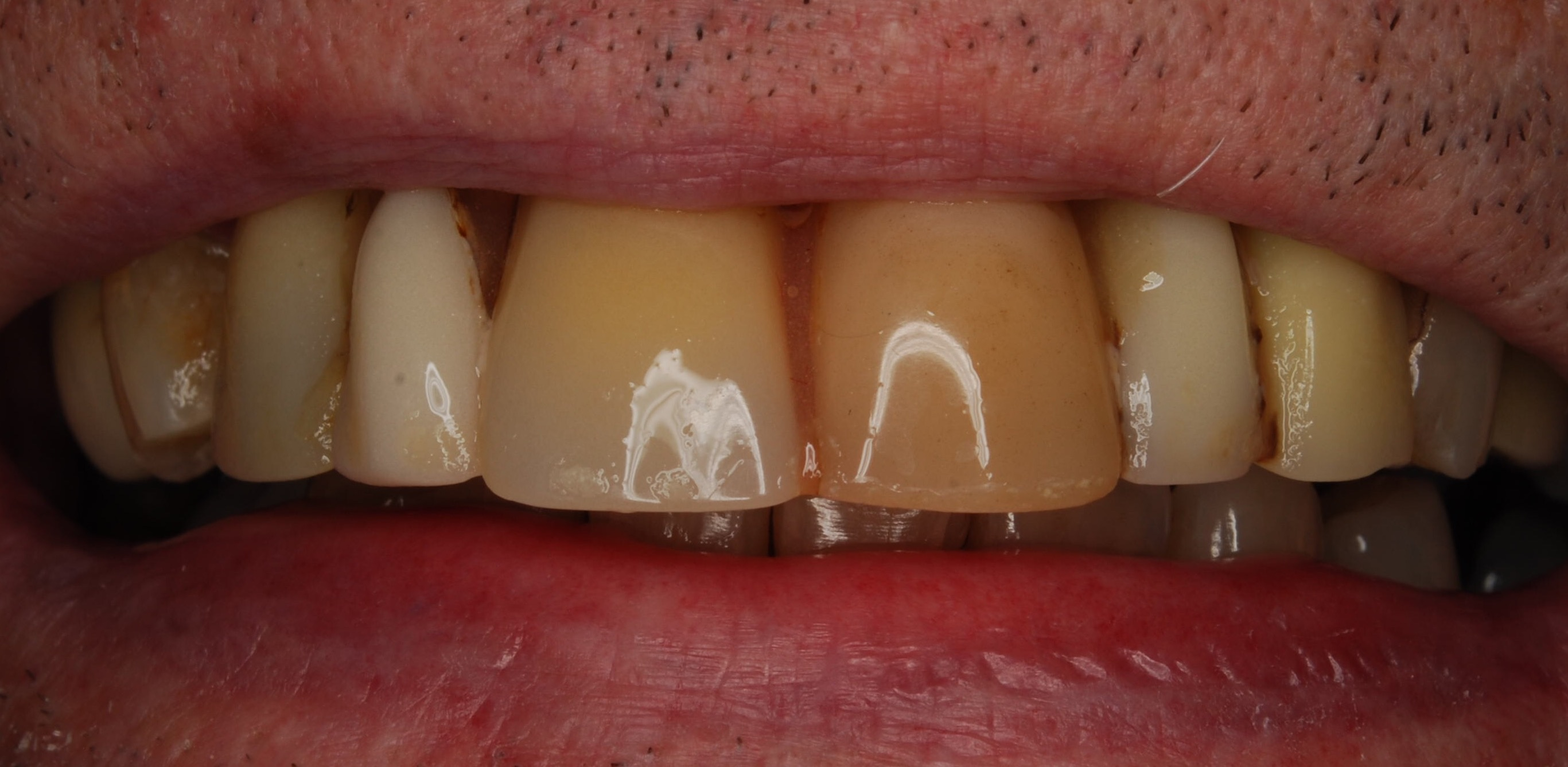 Before - Denture Case