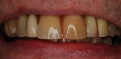 Before - Denture Case