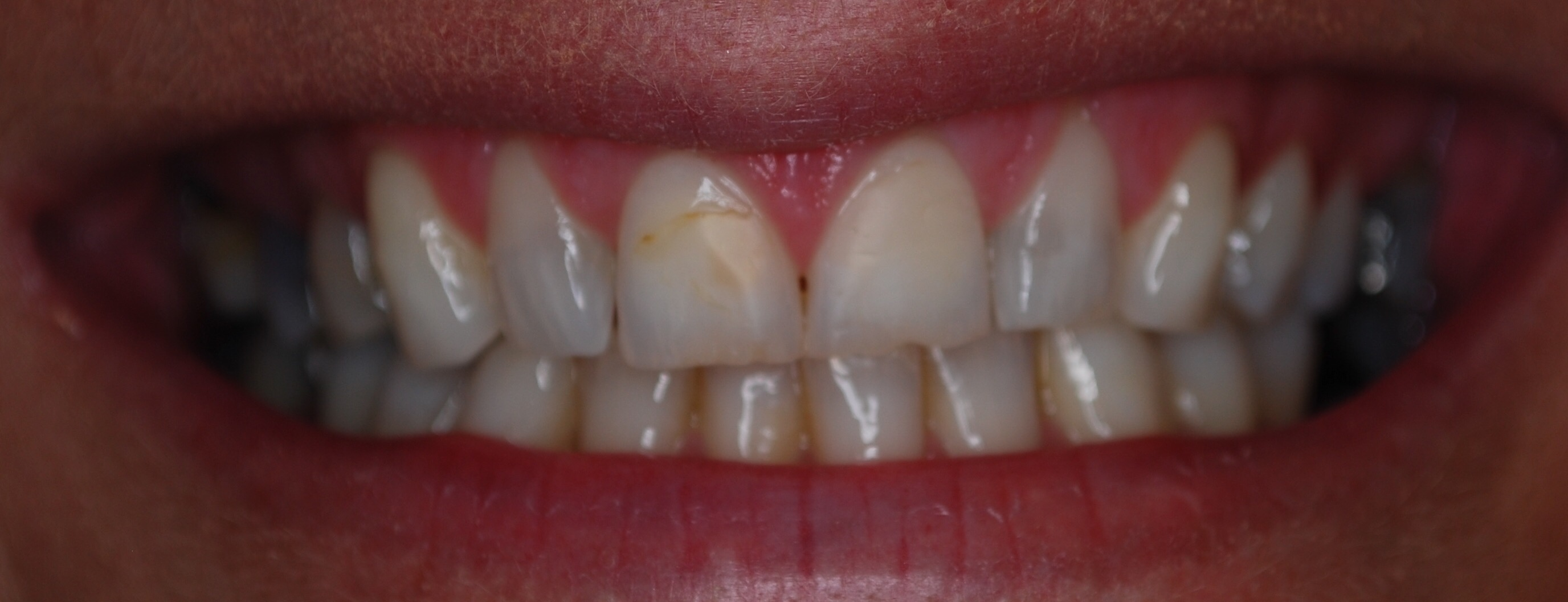 Before - Composite Veneer Case