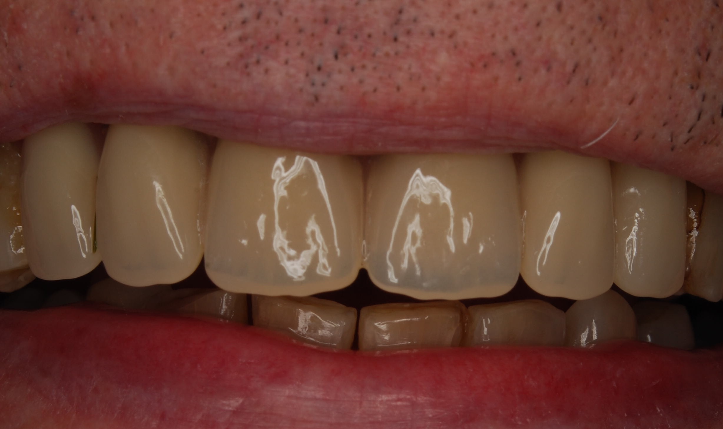 After - Denture Case