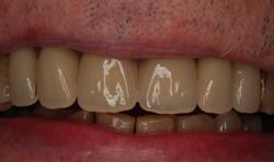 After - Denture Case