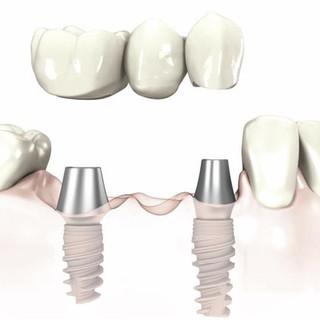 Implant bridge diagram.jpg