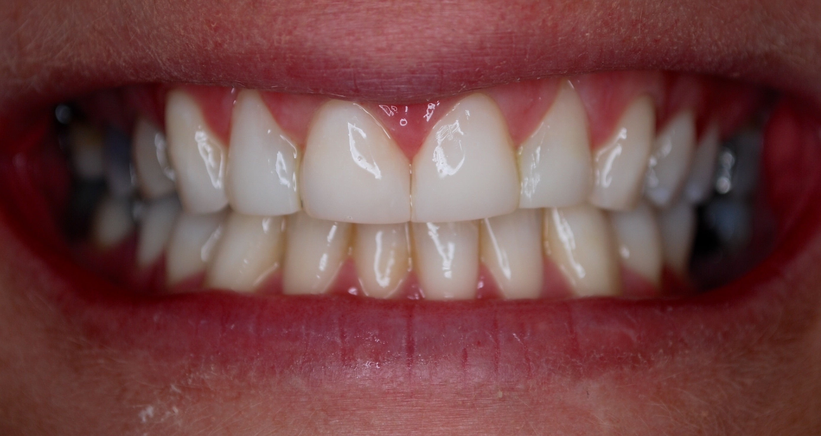After - Composite Veneer Case