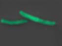 Mycobacterium bovis BCG. SEM picture