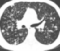 CT scan of CF patient infected with M. abscessus