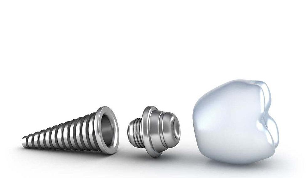 Dental_Implants-10.jpg