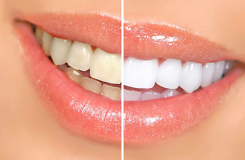 whitening-options-1.jpg