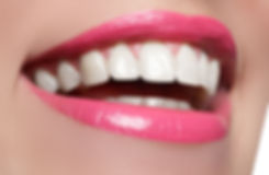 woman-with-hollywood-smile.jpg