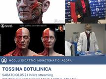 TOSSINA BOTULINICA - Recap corso monotematico 08.05.2021