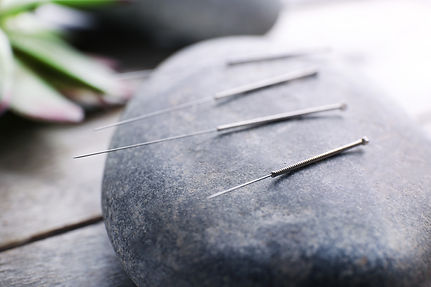 Somerset Acupuncture