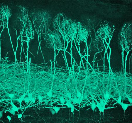 Mitral Cells
