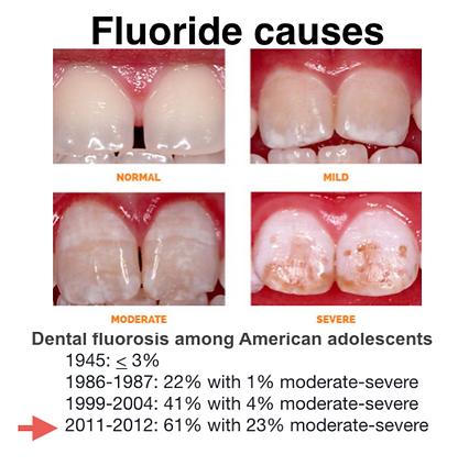 Dental Fluorosis.PNG