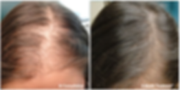 Mesotherapy-before.png