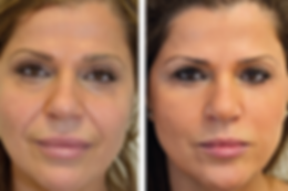 Facelift, Facelift Cost in Cornwall, Plastic surgeon, Sagging Skin, Botox, Wrinkles, Truro, Cornwall