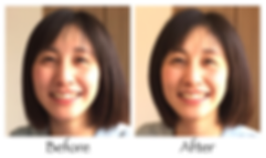 美容鍼のビフォー・アフター2