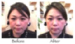 美容鍼のビフォー・アフター3