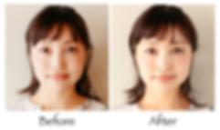 美容鍼のビフォー・アフター1