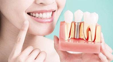 Implantes%202_edited.jpg