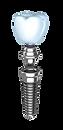 Dental-implants-2_edited.png