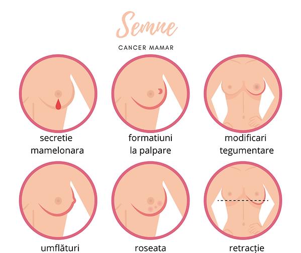 semne cancer mamar pentru control mamogr