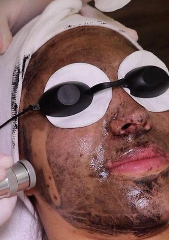 Carbon Peeling mit Laser