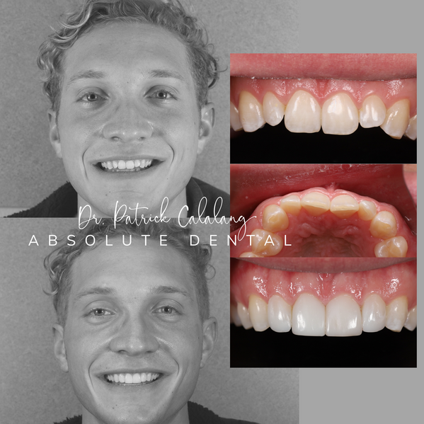 Direct Composite Veneers Before and After