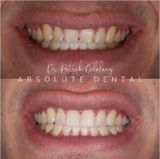 Dental makeover using composite on front teeth
