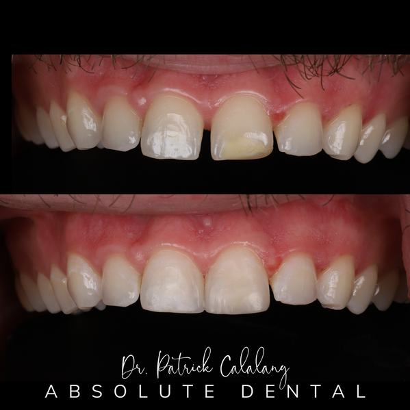 Before and After Smile Using Dental Composite