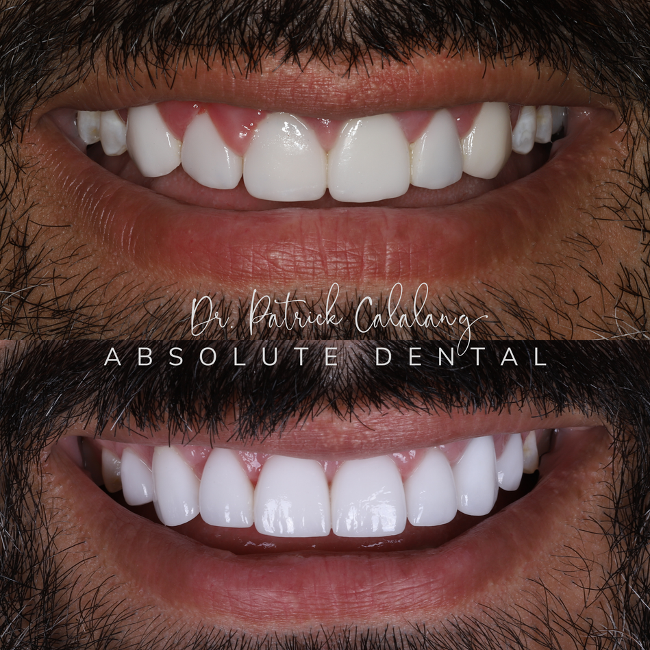 Before and After Smile BL1 Veneers