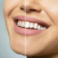 Teeth before and after care, therapy and