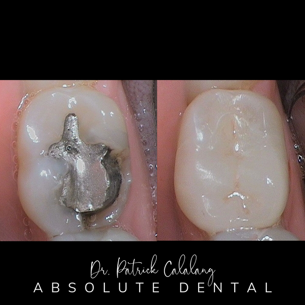 Before and After Metal Filling Replacement