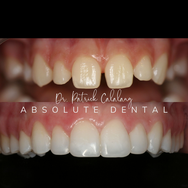 Dental Composite Before and After