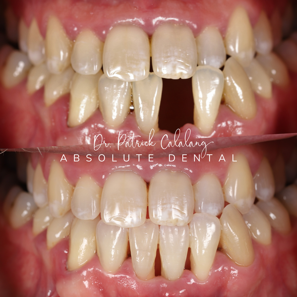 Emergency Tooth Loss Correction