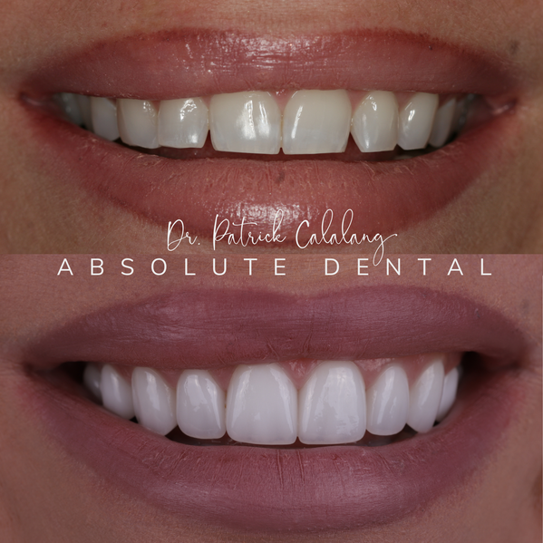 Shade BL1 Veneers Before and After