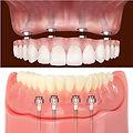 implant over denture types.jpg