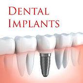 Dental Implants illustration1.jpg