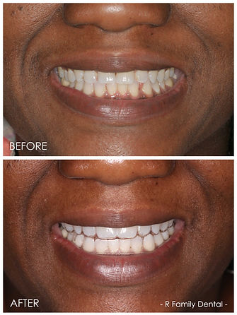 Look at what ClearCorrect can do!