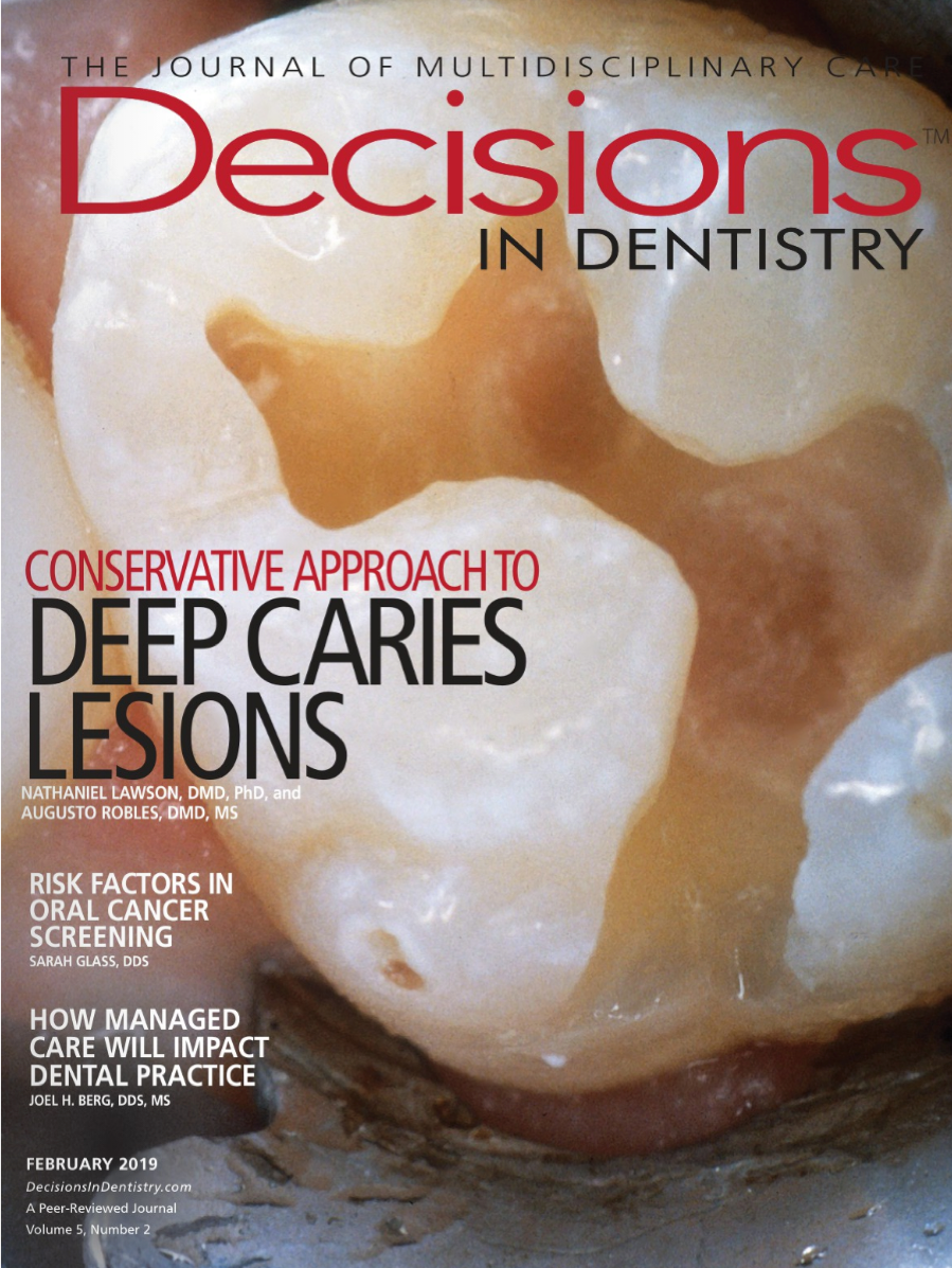 Treatment of Deep Caries