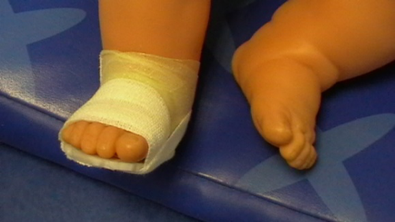 Montage plaquette malposition de pied