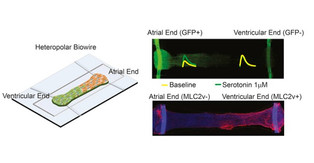 Heart-on-a-chip technology predicts preclinical systolic and diastolic in vivo observations
